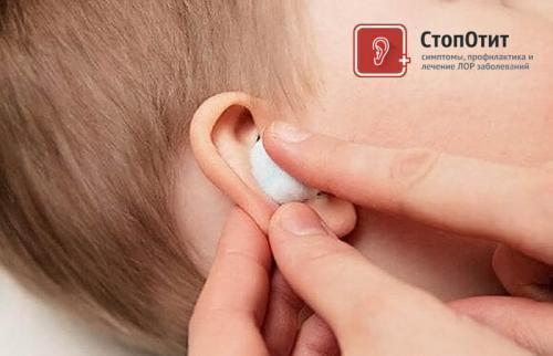 Как сделать турунду из бинта в ухо. Как правильно сделать турунды в ухо